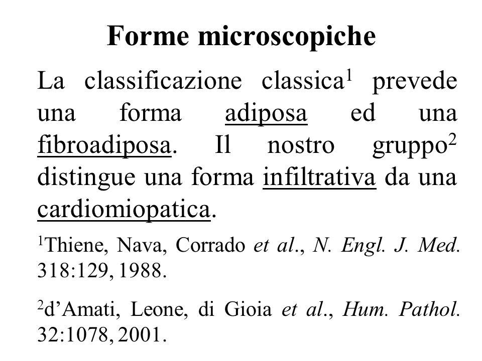 Forme microscopiche La classificazione classica 1 prevede una forma adiposa ed una fibroadiposa. Il nostro gruppo 2 distingue una forma infiltrativa d