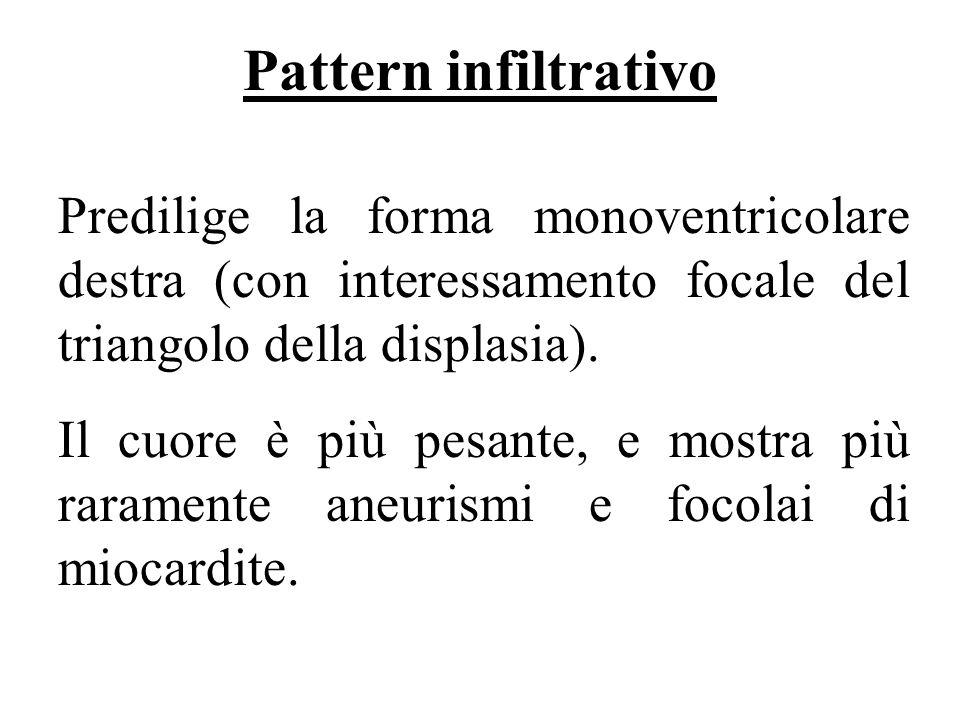 Pattern infiltrativo Predilige la forma monoventricolare destra (con interessamento focale del triangolo della displasia). Il cuore è più pesante, e m