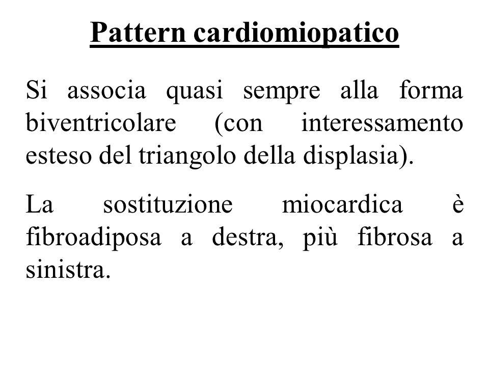 Pattern cardiomiopatico Si associa quasi sempre alla forma biventricolare (con interessamento esteso del triangolo della displasia). La sostituzione m
