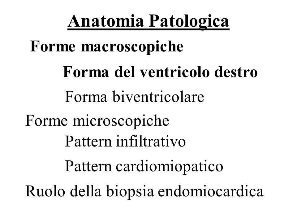 Storia naturale Forma con scompenso cardiaco destro Forma con scompenso cardiaco biventricolare: cè una progressiva dilatazione dei ventricoli con scompenso cardiaco che richiede il trapianto o porta a morte.