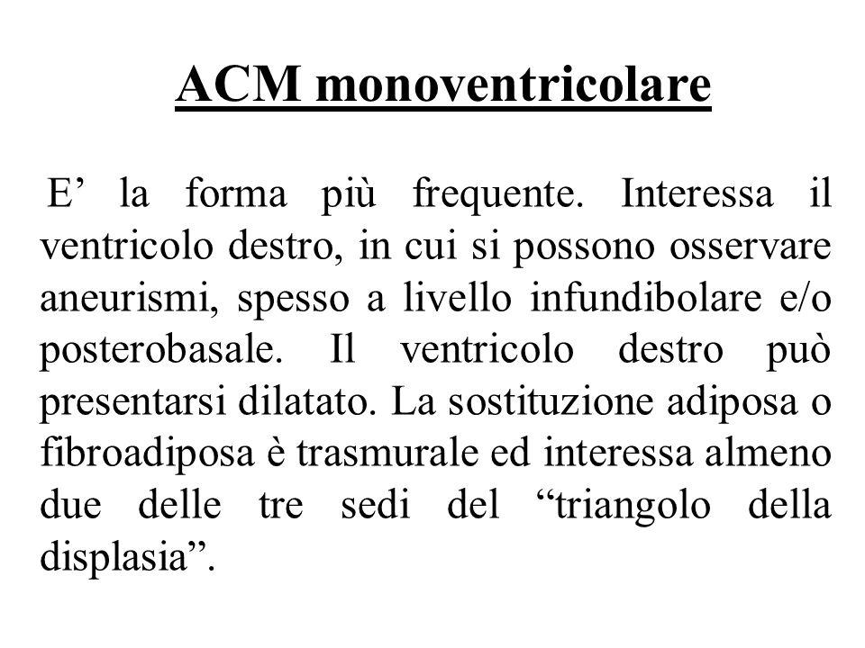 ACM monoventricolare E la forma più frequente. Interessa il ventricolo destro, in cui si possono osservare aneurismi, spesso a livello infundibolare e