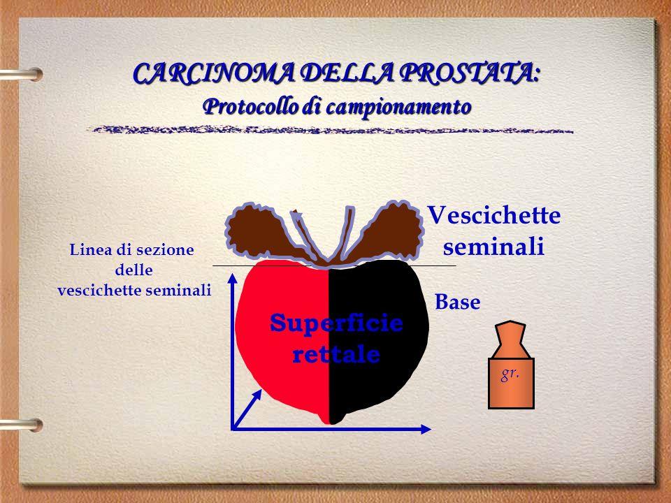 Vescichette seminali Base Linea di sezione delle vescichette seminali gr. Superficie rettale CARCINOMA DELLA PROSTATA: Protocollo di campionamento
