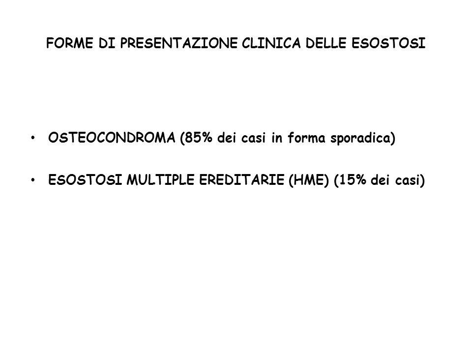 FORME DI PRESENTAZIONE CLINICA DELLE ESOSTOSI OSTEOCONDROMA (85% dei casi in forma sporadica) ESOSTOSI MULTIPLE EREDITARIE (HME) (15% dei casi)