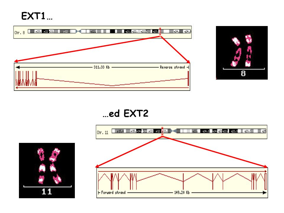 RISULTATI DELLO STUDIO GENETICO SULLE HME (SAN GIOVANNI ROTONDO) Famiglie studiate: 30 Mutazioni identificate: 21 (70%) 17 Mutazioni in EXT1 + 4 Mutazioni in EXT2 12 mutazioni già conosciute 9 mutazioni nuove 67% mutazioni frameshift o nonsense 33% mutazioni missense Tecniche utilizzate: PCR e Sequenziamento DNA