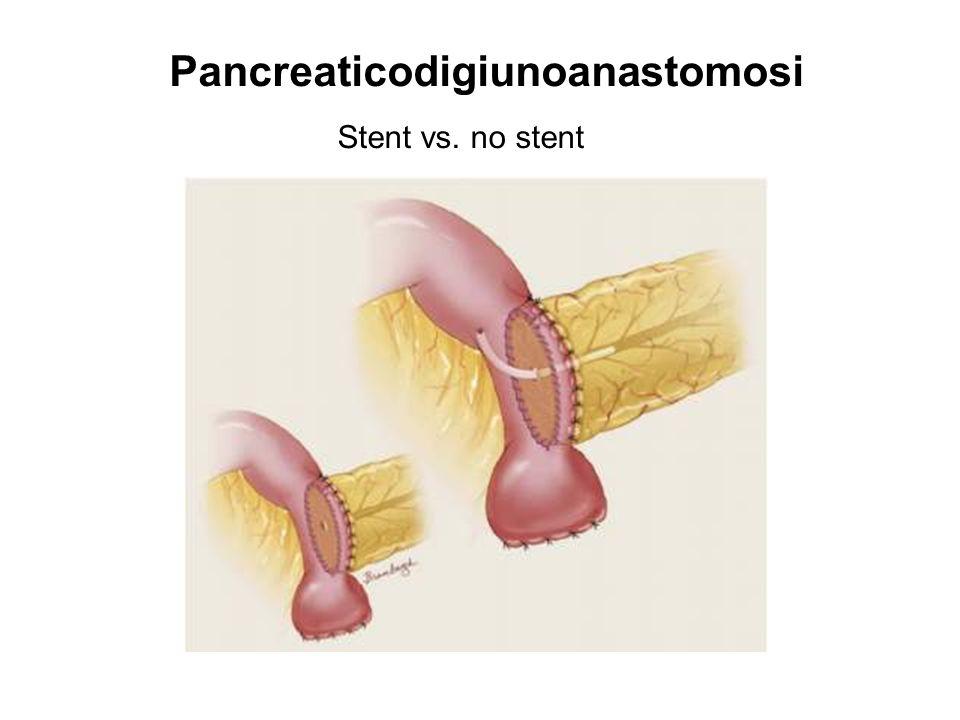 Pancreaticodigiunoanastomosi Stent vs. no stent