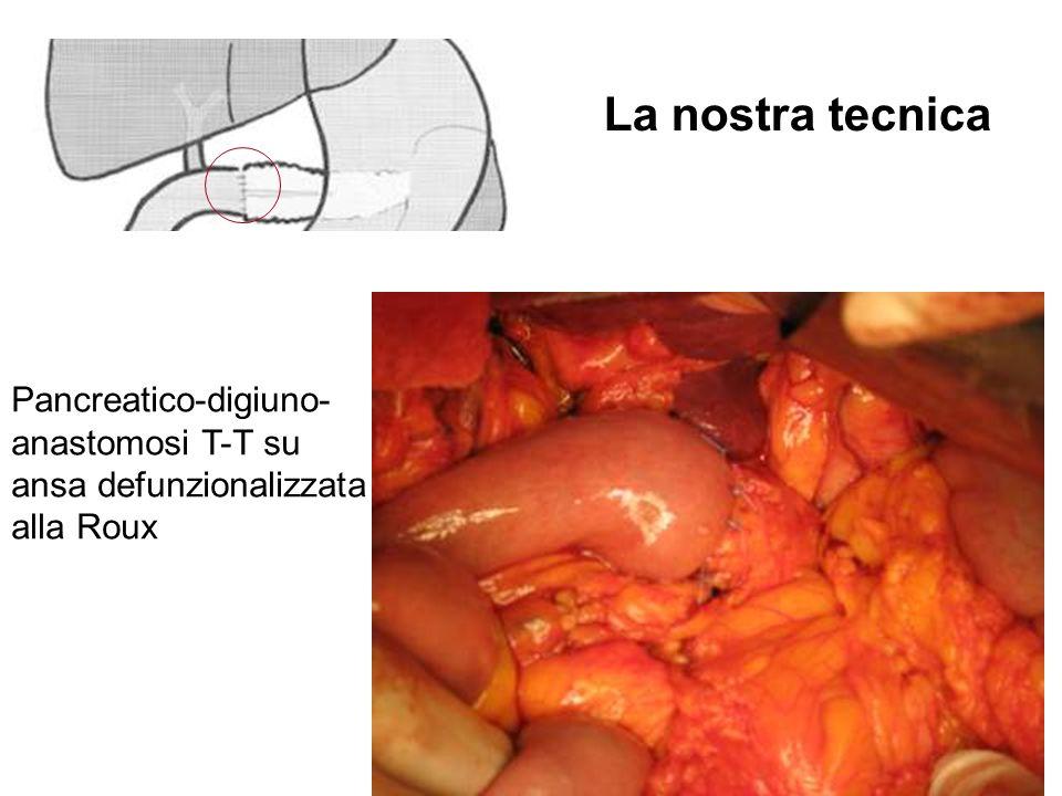 La nostra tecnica Pancreatico-digiuno- anastomosi T-T su ansa defunzionalizzata alla Roux