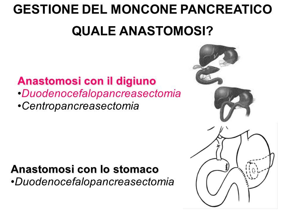 GESTIONE DEL MONCONE PANCREATICO QUALE ANASTOMOSI? Anastomosi con il digiuno Duodenocefalopancreasectomia Centropancreasectomia Anastomosi con lo stom