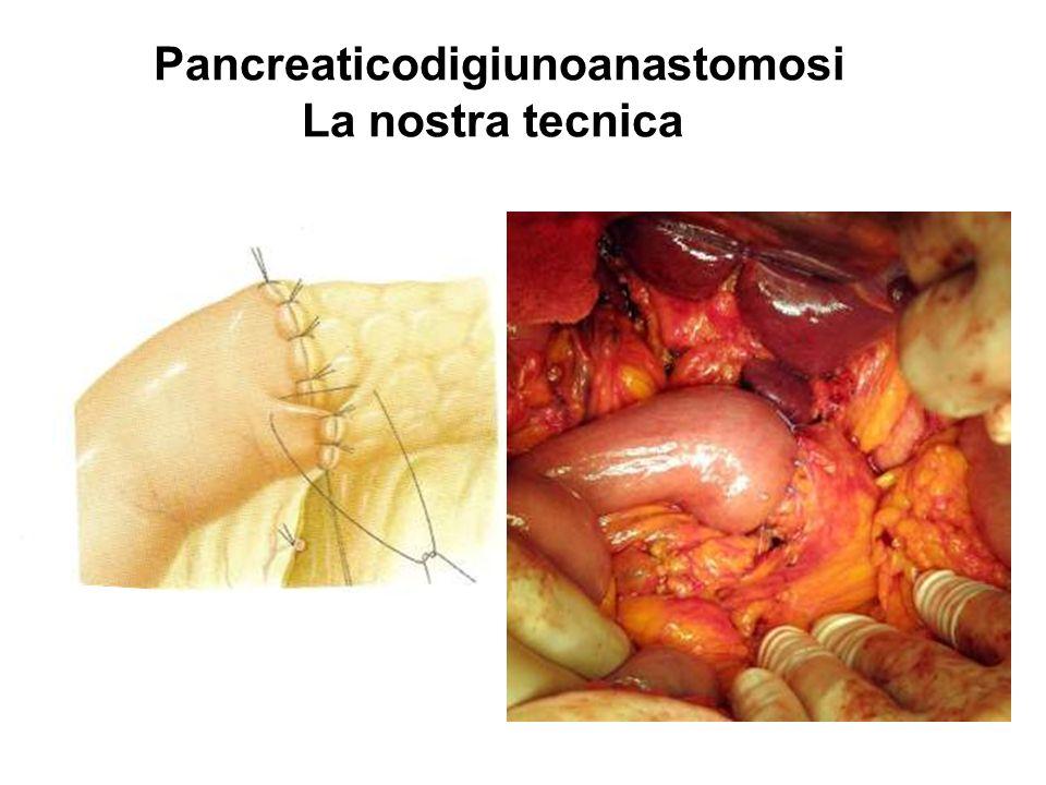 Pancreaticodigiunoanastomosi La nostra tecnica