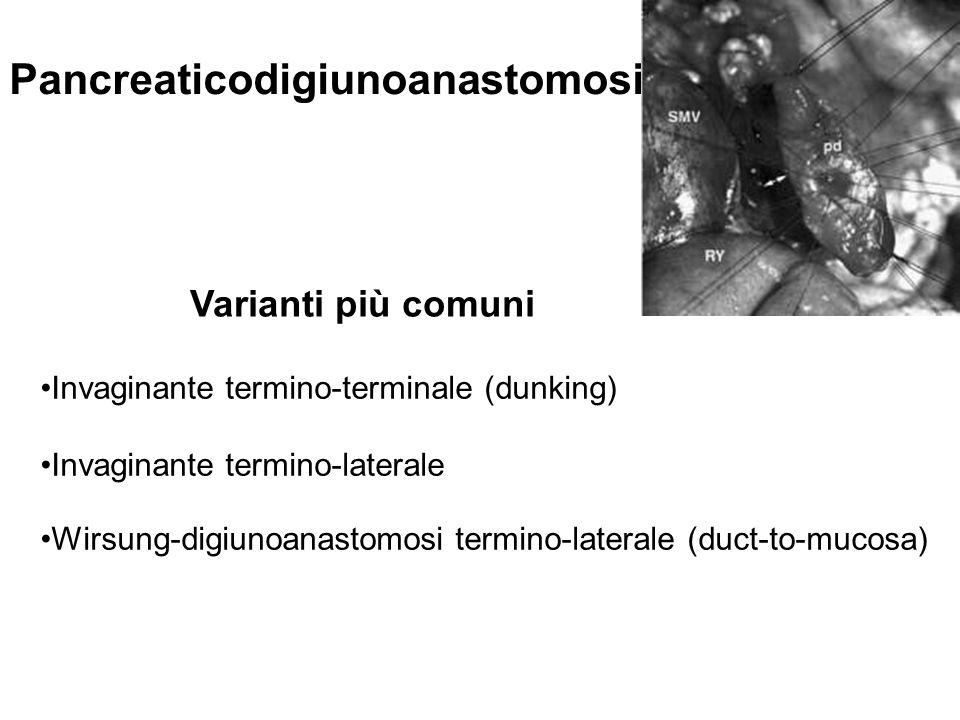Pancreaticodigiunoanastomosi Varianti più comuni Invaginante termino-terminale (dunking) Invaginante termino-laterale Wirsung-digiunoanastomosi termin