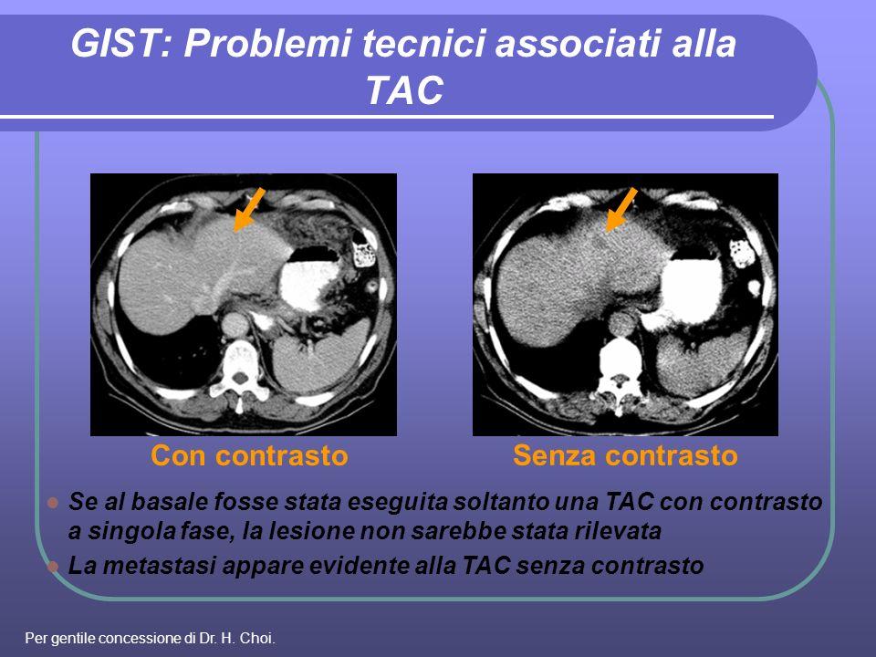 Con contrasto Senza contrasto Se al basale fosse stata eseguita soltanto una TAC con contrasto a singola fase, la lesione non sarebbe stata rilevata L