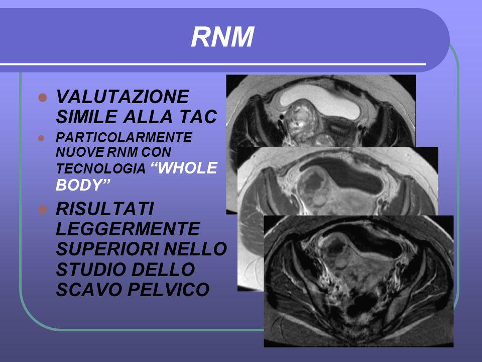 RNM VALUTAZIONE SIMILE ALLA TAC PARTICOLARMENTE NUOVE RNM CON TECNOLOGIA WHOLE BODY RISULTATI LEGGERMENTE SUPERIORI NELLO STUDIO DELLO SCAVO PELVICO