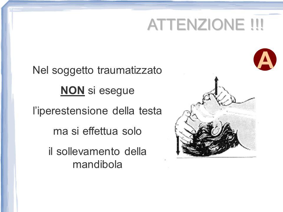 ATTENZIONE !!! Nel soggetto traumatizzato NON si esegue liperestensione della testa ma si effettua solo il sollevamento della mandibola A