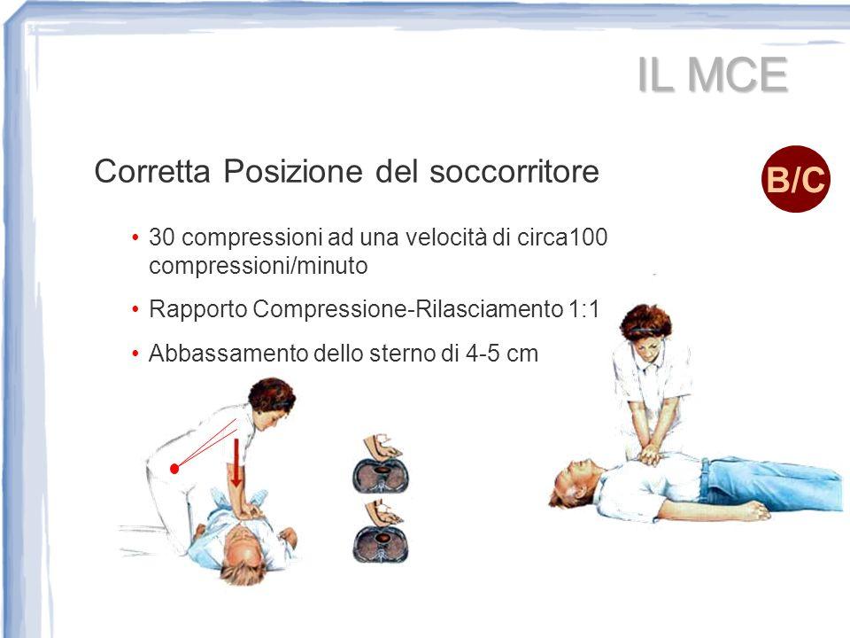 IL MCE Corretta Posizione del soccorritore 30 compressioni ad una velocità di circa100 compressioni/minuto Rapporto Compressione-Rilasciamento 1:1 Abb