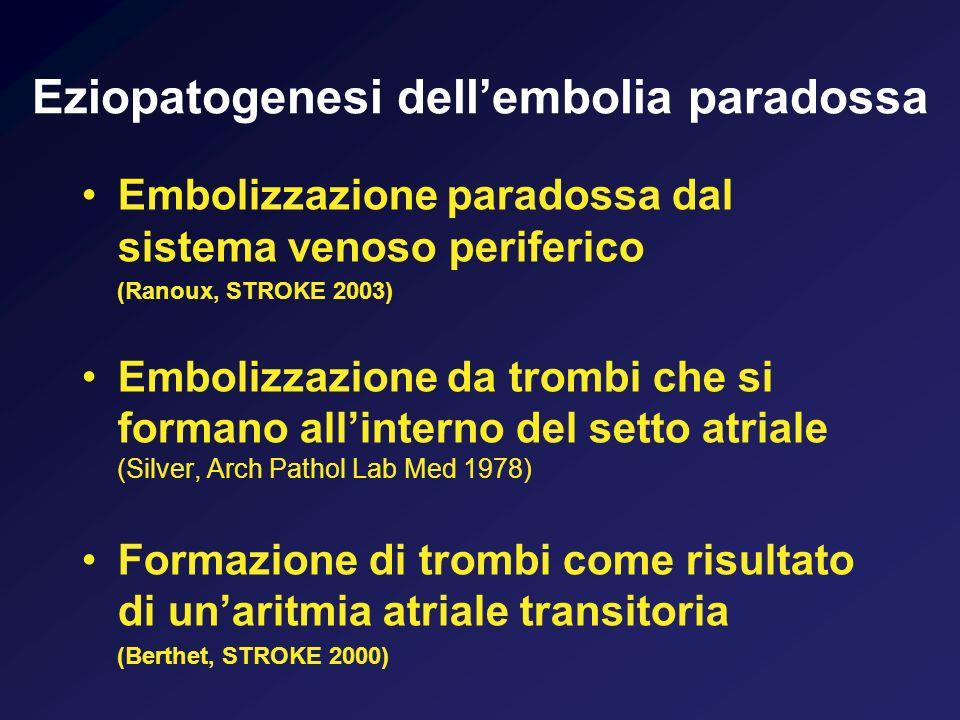 Eziopatogenesi dellembolia paradossa Embolizzazione paradossa dal sistema venoso periferico (Ranoux, STROKE 2003) Embolizzazione da trombi che si form