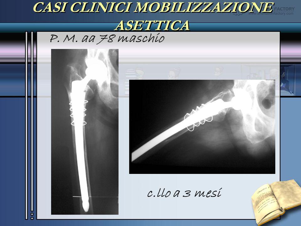CASI CLINICI MOBILIZZAZIONE ASETTICA P. M. aa 78 maschio c.llo a 3 mesi