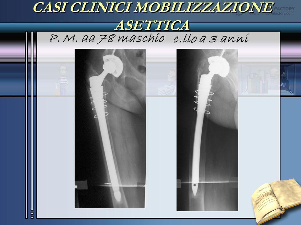 CASI CLINICI MOBILIZZAZIONE ASETTICA P. M. aa 78 maschio c.llo a 3 anni