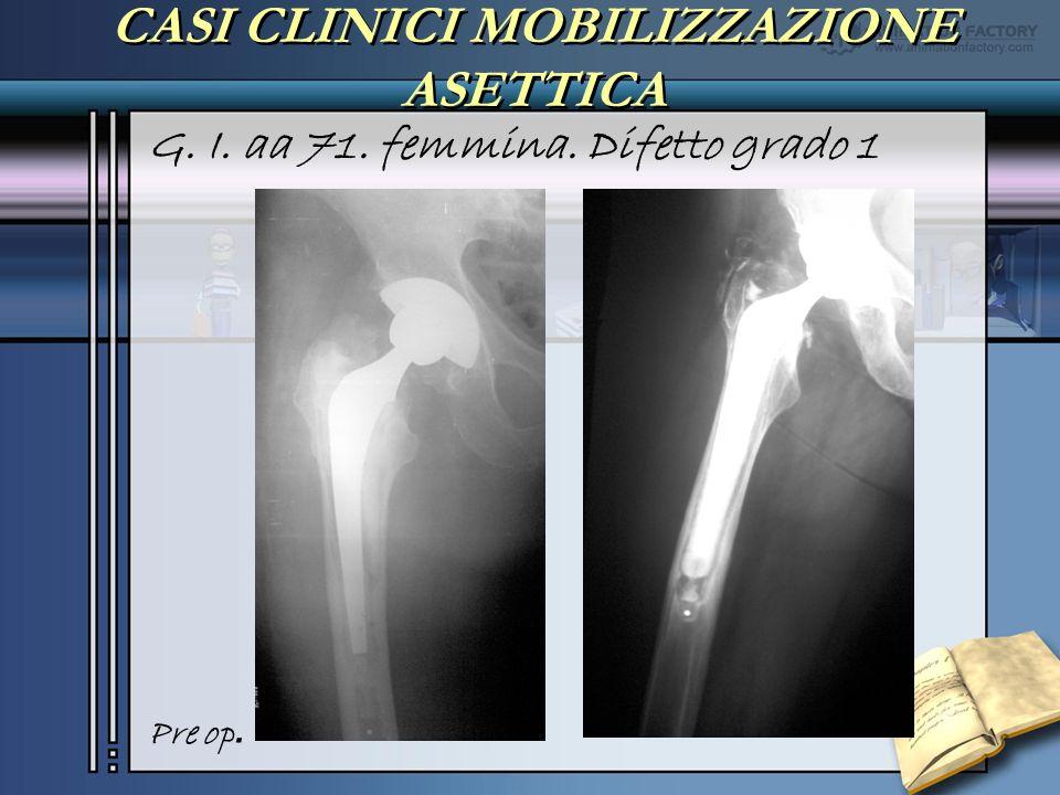 CASI CLINICI MOBILIZZAZIONE ASETTICA G. I. aa 71. femmina. Difetto grado 1 Pre op.