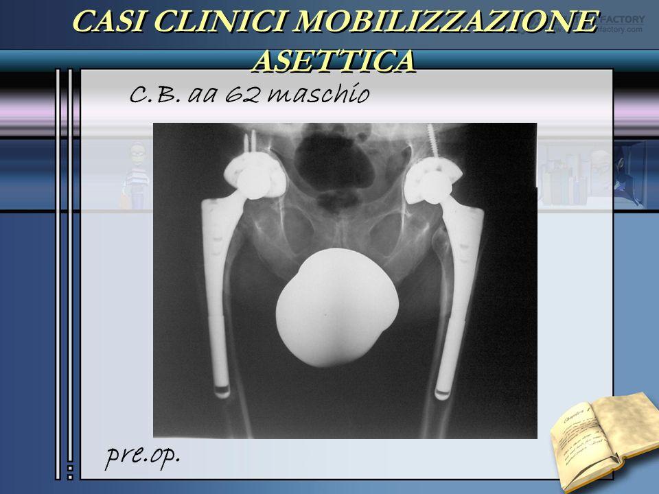 CASI CLINICI MOBILIZZAZIONE ASETTICA C.B. aa 62 maschio pre.op.