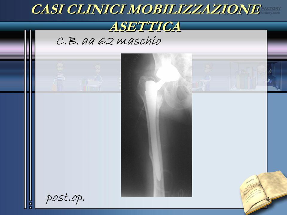 CASI CLINICI MOBILIZZAZIONE ASETTICA C.B. aa 62 maschio post.op.