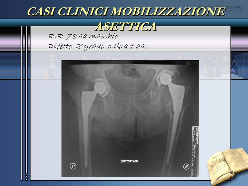 CASI CLINICI MOBILIZZAZIONE ASETTICA R.R. 78 aa maschio Difetto 2° grado c.llo a 1 aa.