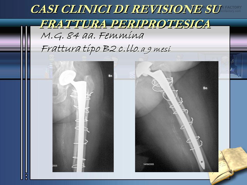 CASI CLINICI DI REVISIONE SU FRATTURA PERIPROTESICA M.G. 84 aa. Femmina Frattura tipo B2 c.llo. a 9 mesi