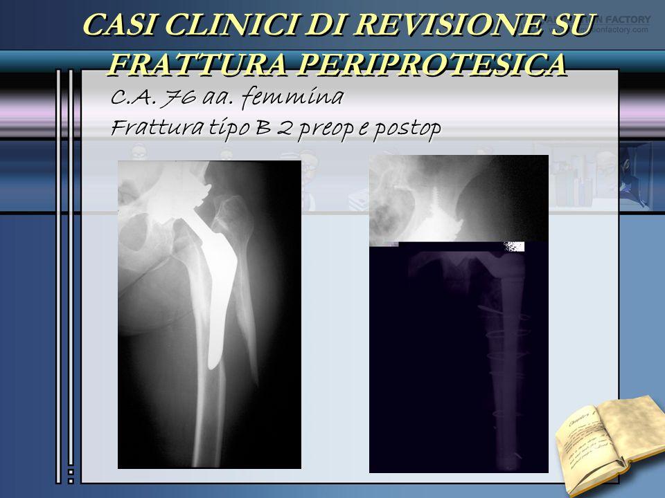 CASI CLINICI DI REVISIONE SU FRATTURA PERIPROTESICA C.A. 76 aa. femmina Frattura tipo B 2 preop e postop