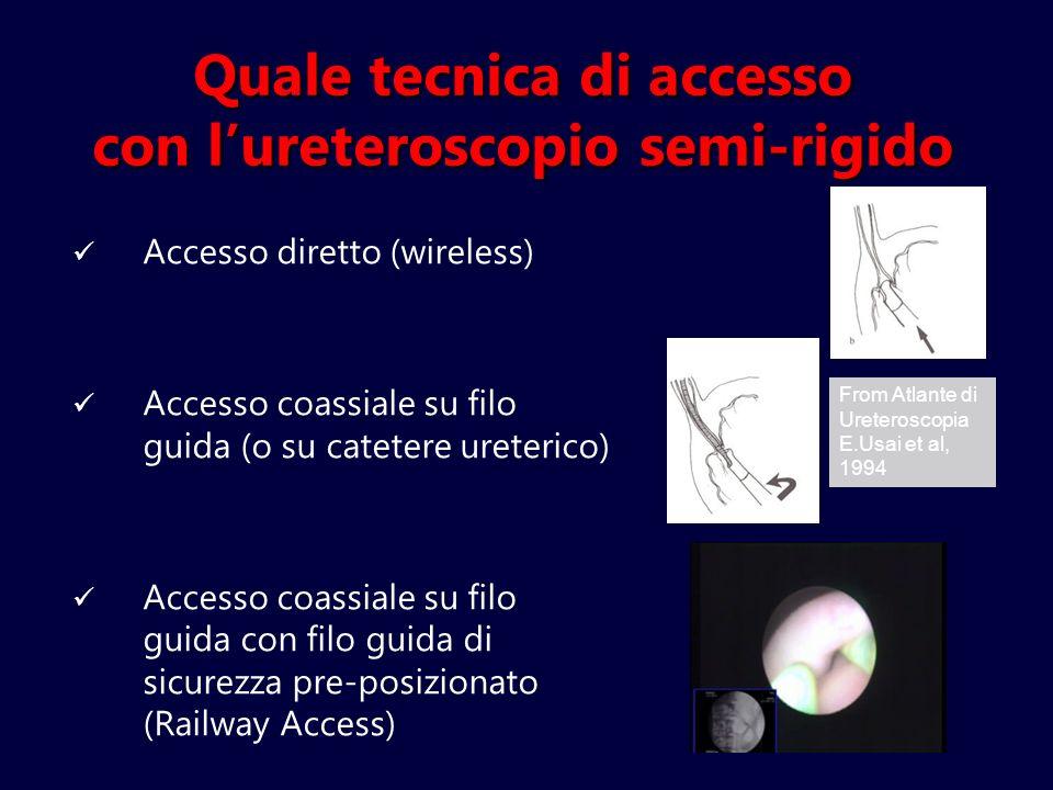 Quale tecnica di accesso con lureteroscopio semi-rigido Accesso diretto (wireless) Accesso coassiale su filo guida (o su catetere ureterico) Accesso c