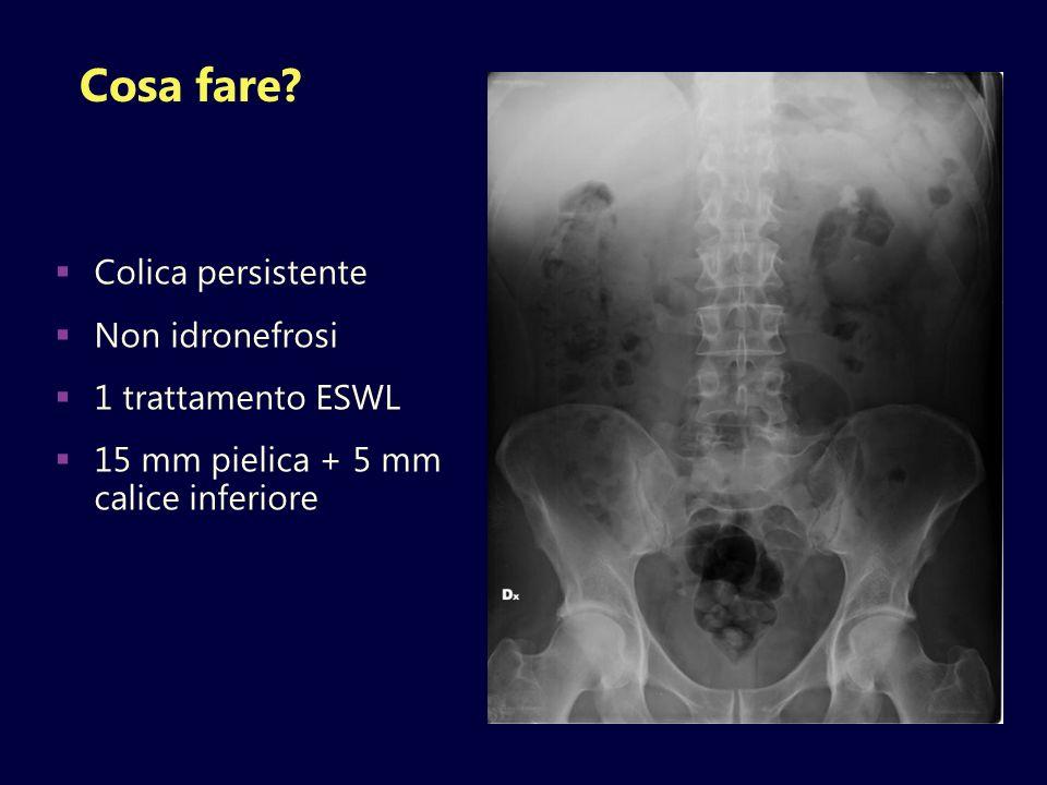 Cosa fare? Colica persistente Non idronefrosi 1 trattamento ESWL 15 mm pielica + 5 mm calice inferiore