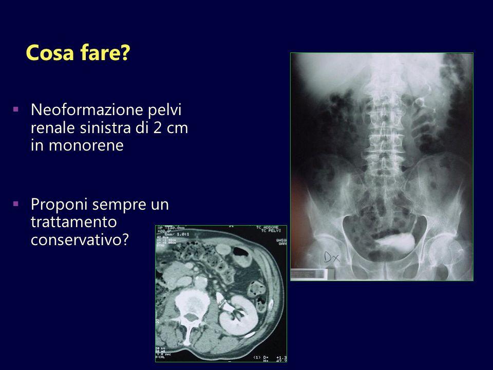 Cosa fare? Neoformazione pelvi renale sinistra di 2 cm in monorene Proponi sempre un trattamento conservativo?