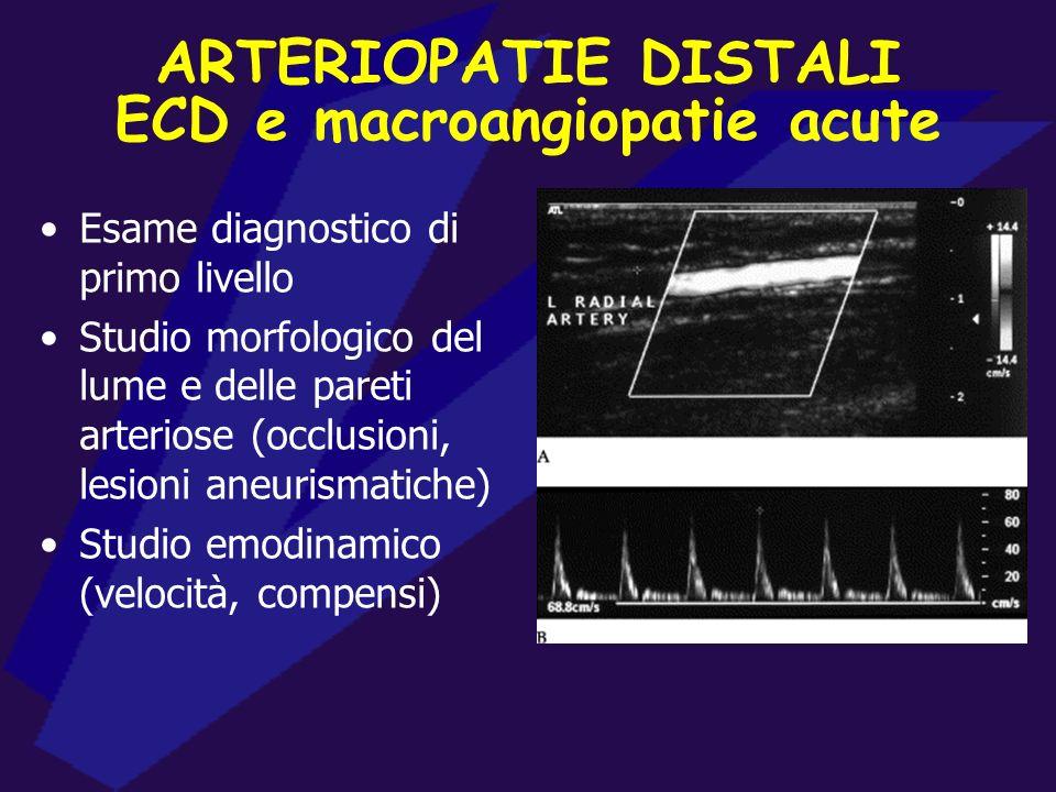 ARTERIOPATIE DISTALI Macroangiopatie acute La diagnostica è sempre indirizzata dalla storia e dalla clinica (cardiopatie emboligene, traumi, recenti p
