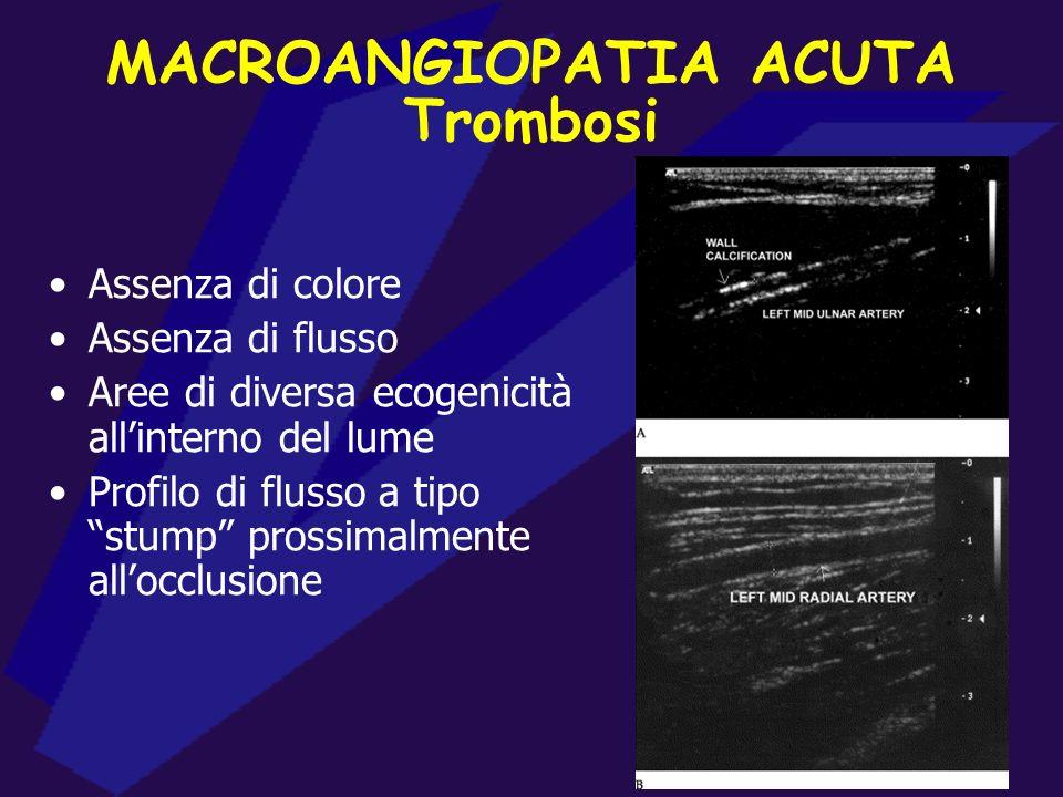 ARTERIOPATIE DISTALI ECD e macroangiopatie acute Esame diagnostico di primo livello Studio morfologico del lume e delle pareti arteriose (occlusioni,
