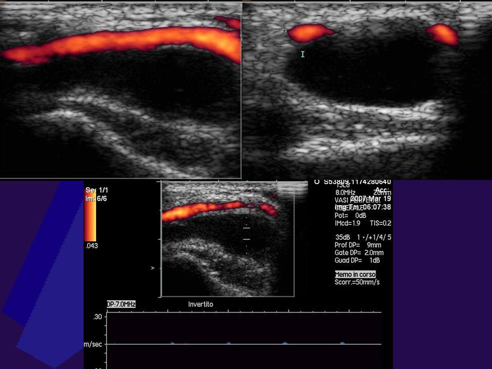MACROANGIOPATIA ACUTA Pseudoaneurisma Turbolenza di flusso intrasacca Flusso a va e vieni sul tramite arterioso Trombosi parietale intrasacca Ruolo te
