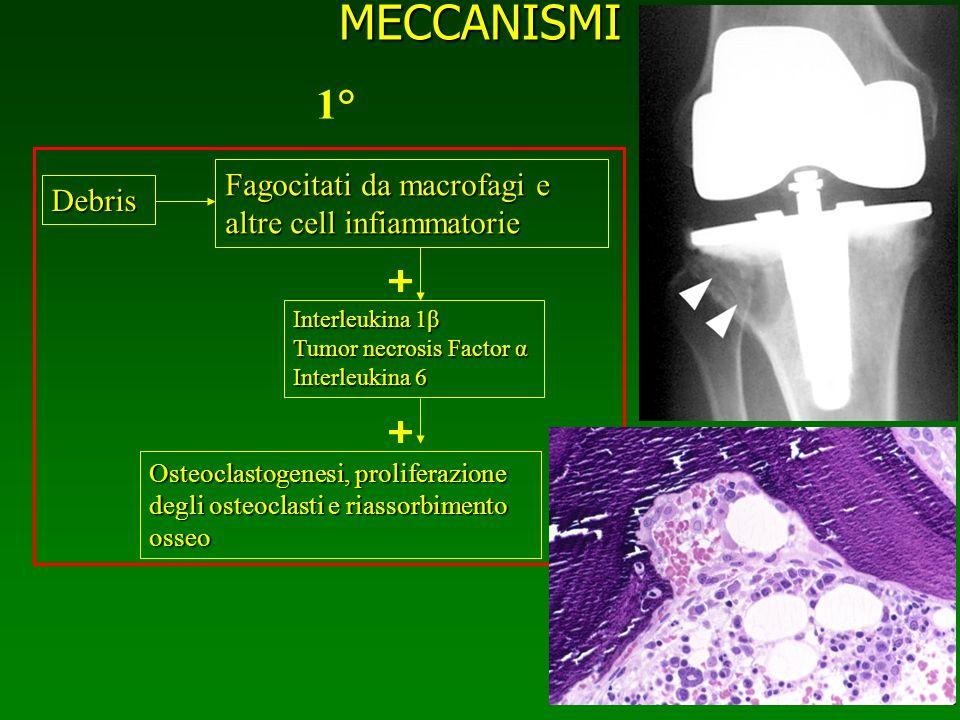 MECCANISMI Debris Fagocitati da macrofagi e altre cell infiammatorie Interleukina 1β Tumor necrosis Factor α Interleukina 6 Osteoclastogenesi, prolife