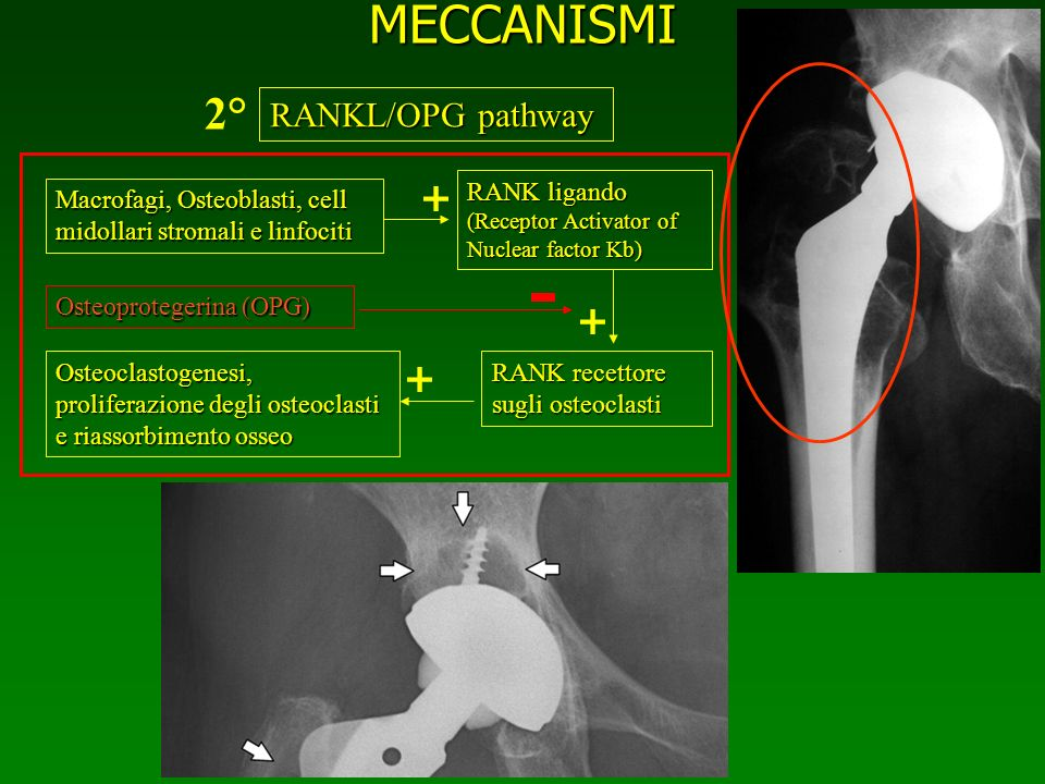 MECCANISMI RANKL/OPG pathway Macrofagi, Osteoblasti, cell midollari stromali e linfociti RANK ligando (Receptor Activator of Nuclear factor Kb) RANK r