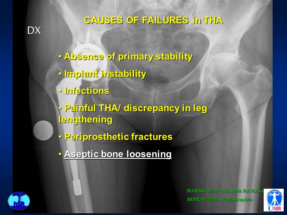 CAUSES OF FAILURES in THA Absence of primary stability Absence of primary stability Implant instability Implant instability Infections Infections Painful THA/ discrepancy in leg lengthening Painful THA/ discrepancy in leg lengthening Periprosthetic fractures Periprosthetic fractures Aseptic bone loosening Aseptic bone loosening HARRIS 2006 - Clin Orth Rel Resear HOPLIN 2008 – RadioGraphics