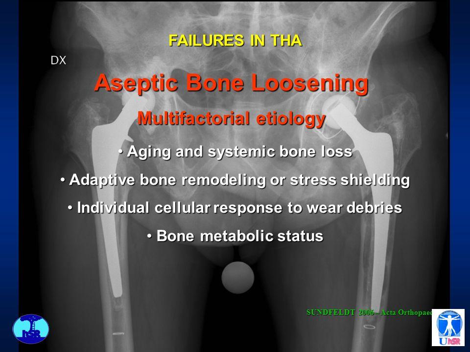 Aseptic Bone Loosening Multifactorial etiology Aging and systemic bone loss Aging and systemic bone loss Adaptive bone remodeling or stress shielding