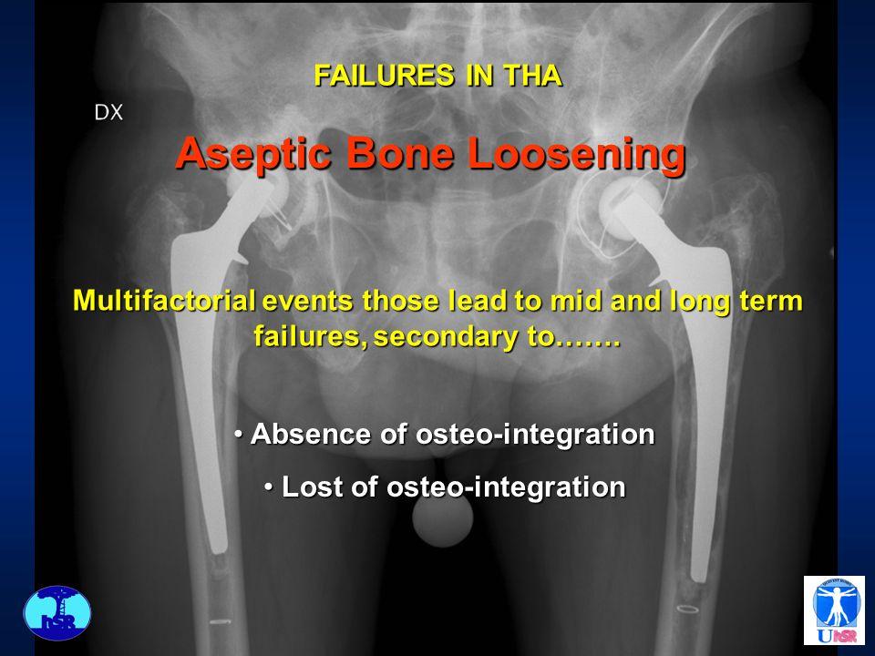 Aseptic Bone Loosening Absence of osteo-integration Absence of osteo-integration Lost of osteo-integration Lost of osteo-integration FAILURES IN THA M