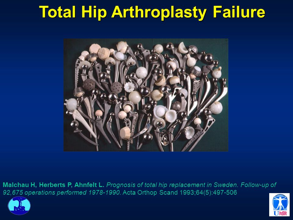 MOST FREQUENT CAUSE OF FAILURES IN THA Aseptic Bone Loosening Aseptic Bone Loosening