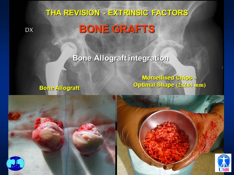 Bone Allograft integration Bone Allograft Morsellised Chips – Optimal Shape (2x2x4 mm) THA REVISION - EXTRINSIC FACTORS BONE GRAFTS