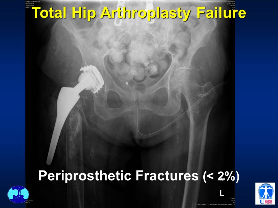 Total Hip Arthroplasty Failure Infections (10%)