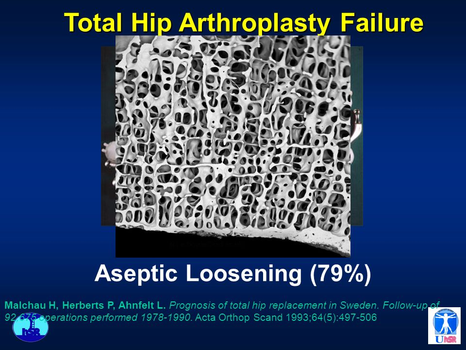 Aseptic Loosening (79%) Total Hip Arthroplasty Failure Malchau H, Herberts P, Ahnfelt L. Prognosis of total hip replacement in Sweden. Follow-up of 92