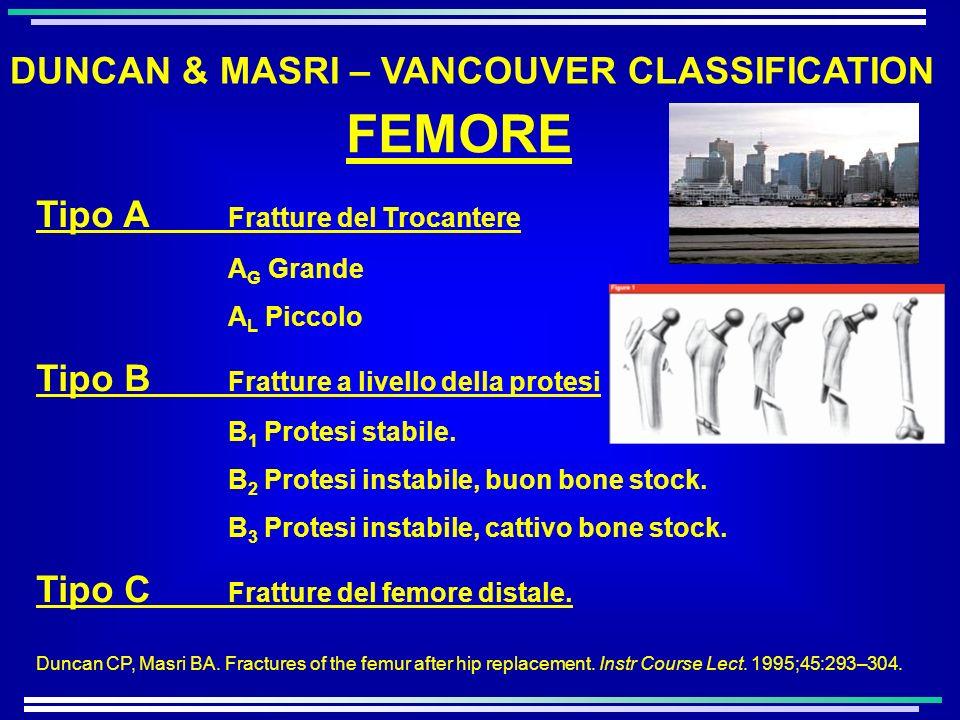 Tipo A Fratture del Trocantere A G Grande A L Piccolo Tipo B Fratture a livello della protesi B 1 Protesi stabile. B 2 Protesi instabile, buon bone st