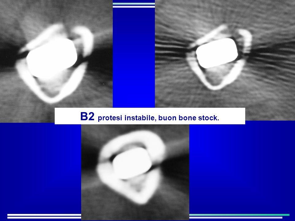 B2 protesi instabile, buon bone stock.