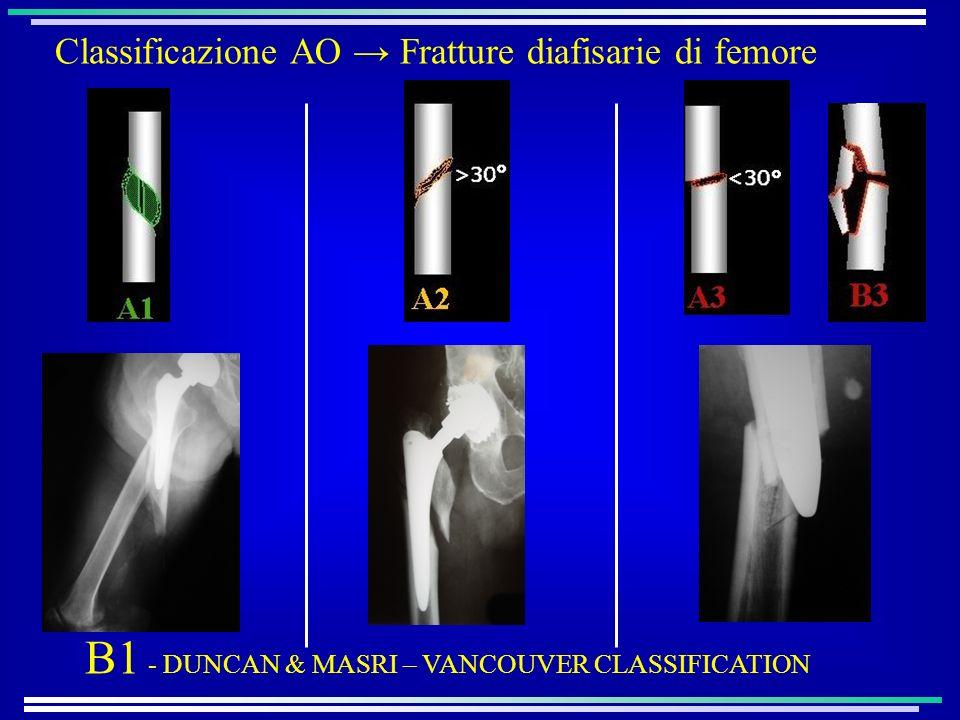 B1 - DUNCAN & MASRI – VANCOUVER CLASSIFICATION Classificazione AO Fratture diafisarie di femore
