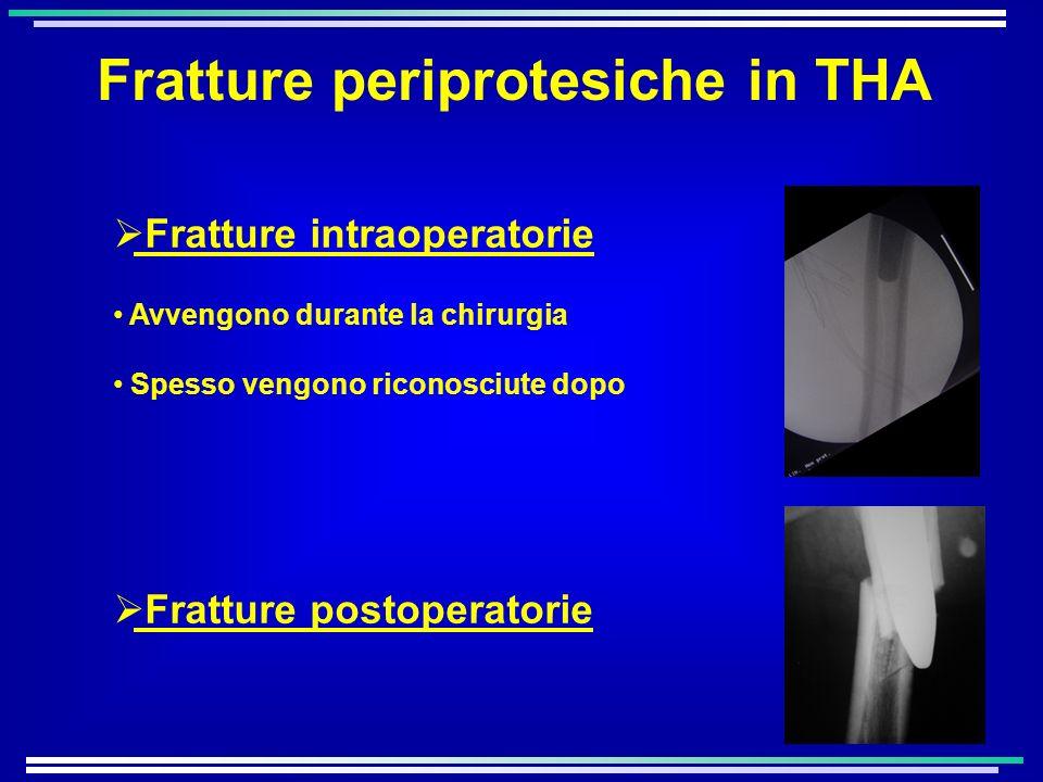 Fratture periprotesiche in THA Fratture intraoperatorie Avvengono durante la chirurgia Spesso vengono riconosciute dopo Fratture postoperatorie