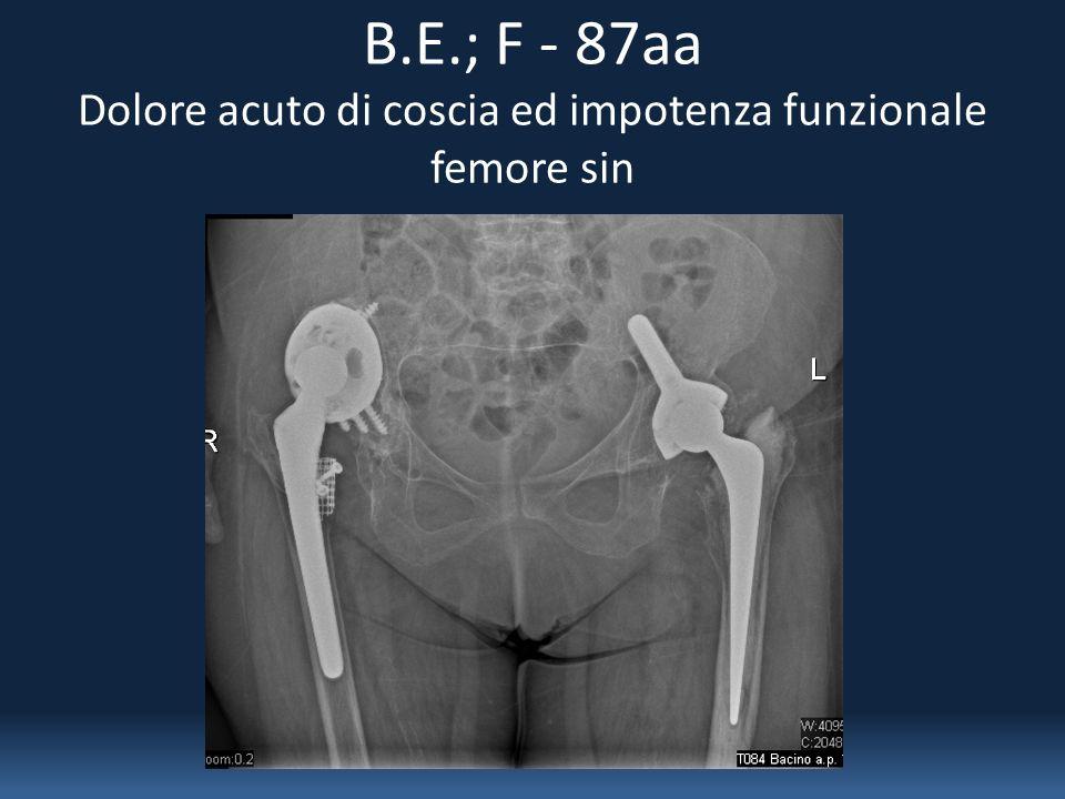 B.E.; F - 87aa Dolore acuto di coscia ed impotenza funzionale femore sin
