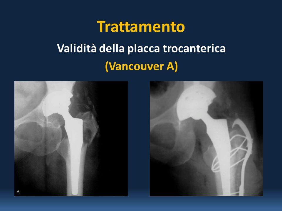 Età 78-89 anni Sesso7 femmine e 1 maschio Tipo di Frattura ( Vancouver) 6 di tipo B 2 di tipo C 8 Pazienti affetti da Frattura Periprotesica di Femore Intervento Chirurgico di Riduzione e Sintesi Ospedale San Carlo Di Nancy U.O.C.