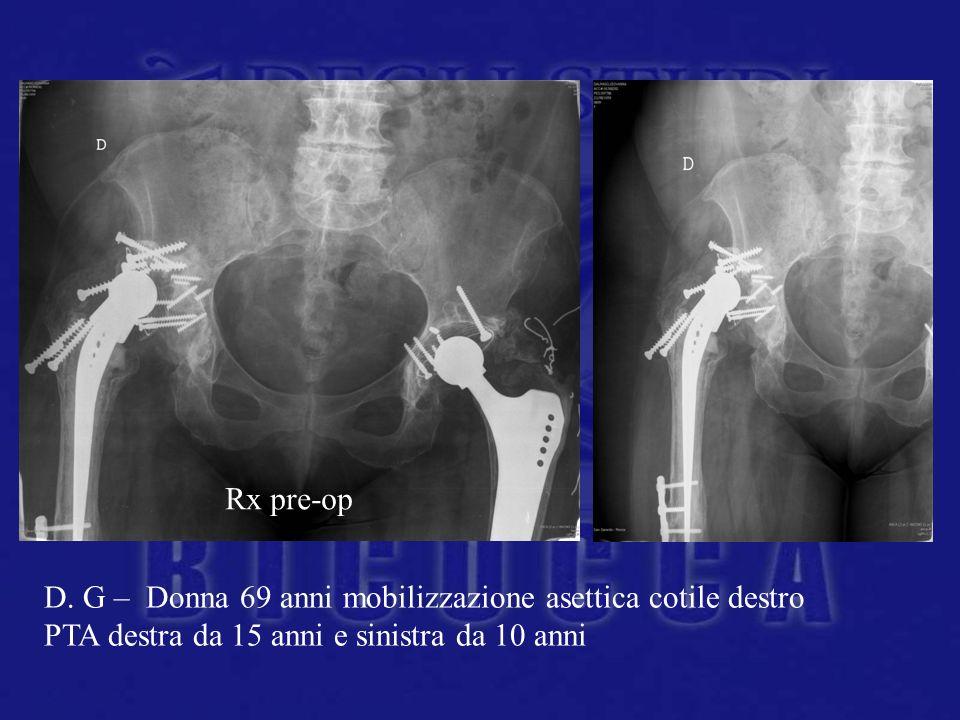 D. G – Donna 69 anni mobilizzazione asettica cotile destro PTA destra da 15 anni e sinistra da 10 anni Rx pre-op