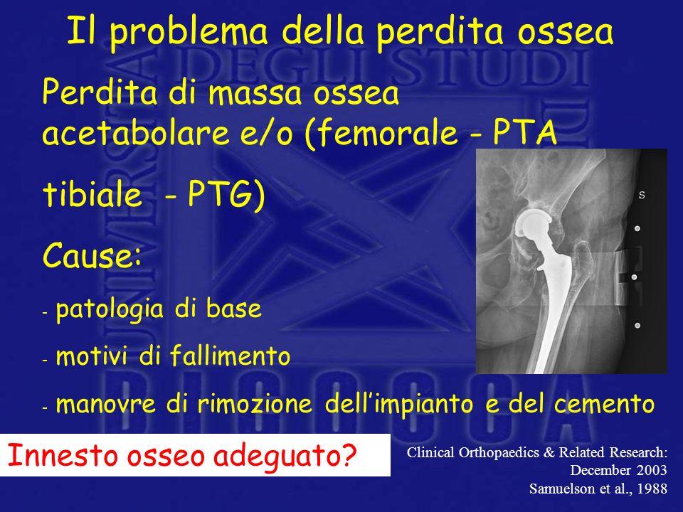 Perdita di massa ossea acetabolare e/o (femorale - PTA tibiale - PTG) Cause: - patologia di base - motivi di fallimento - manovre di rimozione dellimp