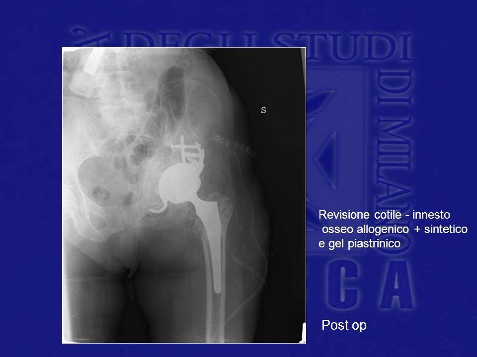 Post op Revisione cotile - innesto osseo allogenico + sintetico e gel piastrinico